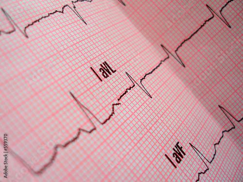 Photo  heart analysis scheme