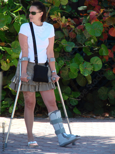 Fotografía pretty girl on crutches with a broken ankle