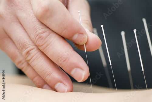 Photo Treatment by acupuncture