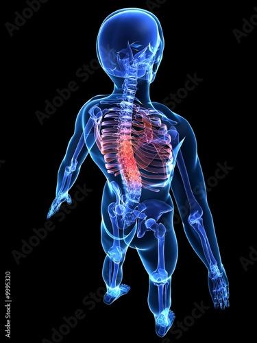 Photo wirbelsäulenbereich mit schmerzen