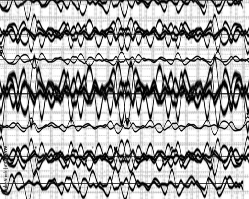Photo  brain wave on a solid white background