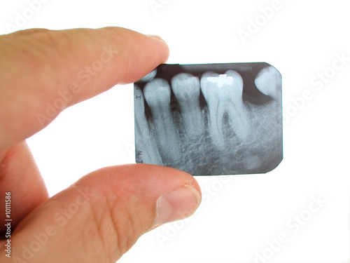 Fotografija  X-ray being examined by a dentist.