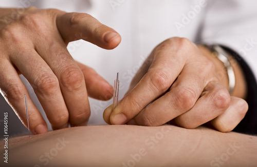 Photo Tapping in acupuncture needle