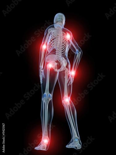 skelett illustration mit schmerzenden gelenken – kaufen Sie diese ...