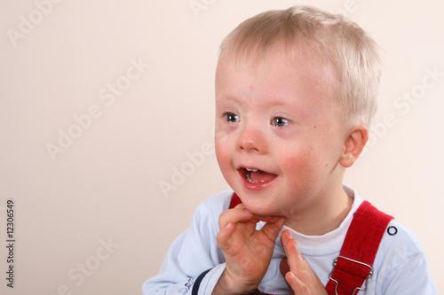 Fotografía  Young Boy with special needs