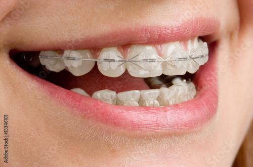 Fotografia  Braces on teeth