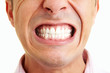 canvas print picture - Zähne zeigen
