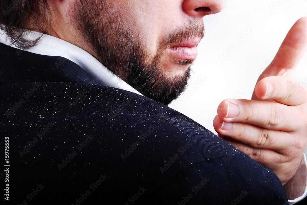 Fototapeta Dandruff issue on man's sholder