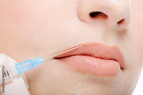 Cosmetic injection in the female lips Poster