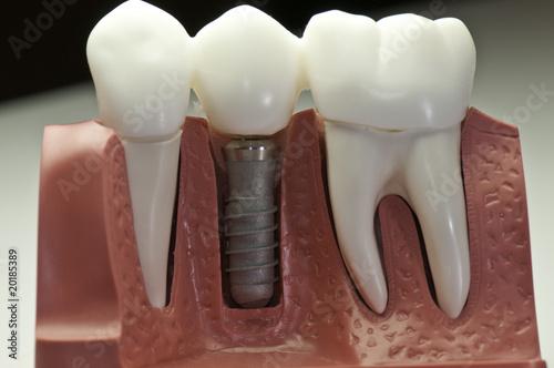 Fotografie, Obraz  Capped Dental Implant Model