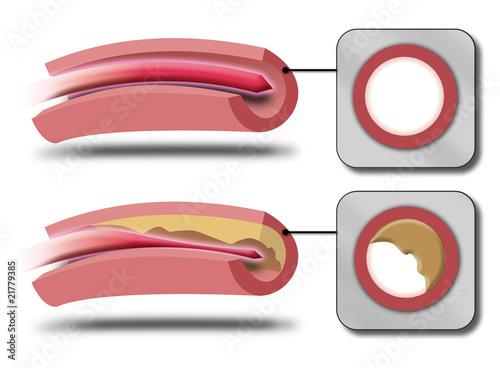 Colesterol1 Canvas Print