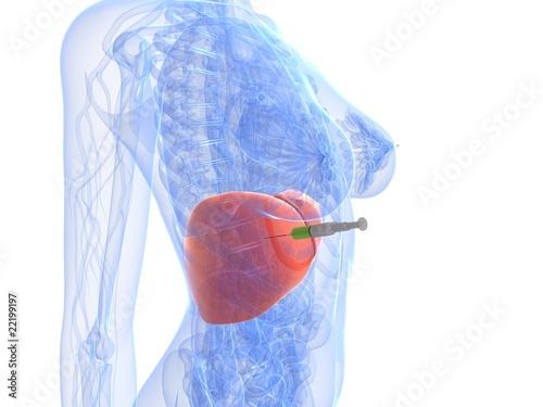 Fotografie, Obraz  Injektion - Biopsie