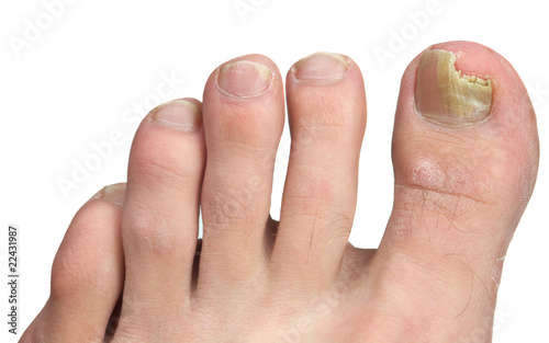 Fotografie, Obraz  Toenail Fngus at Peak Infection