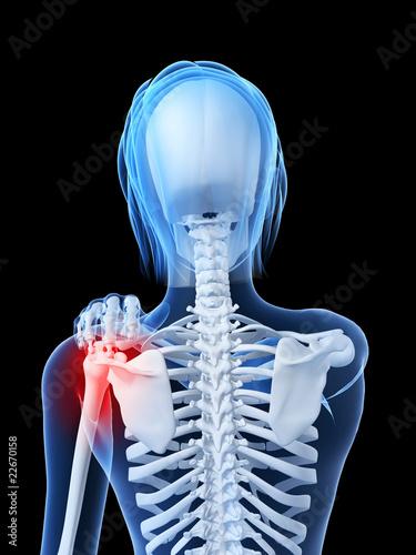Photo transparentes Skelett - markiertes Schultergelenk
