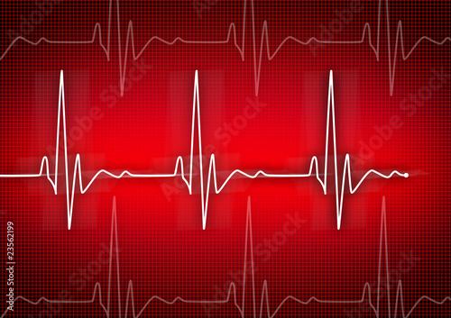 Photo  cardiogram