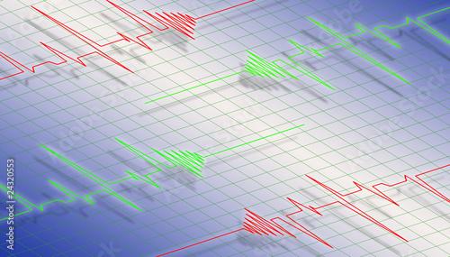 Photo  ECG diagram - isometric view