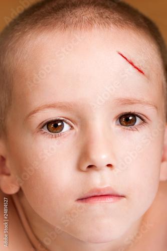 Photo  Wound child