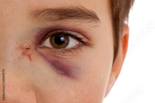 Plakaty o przemocy polamany-nos-i-zranione-niebieskie-oko-po-wypadku