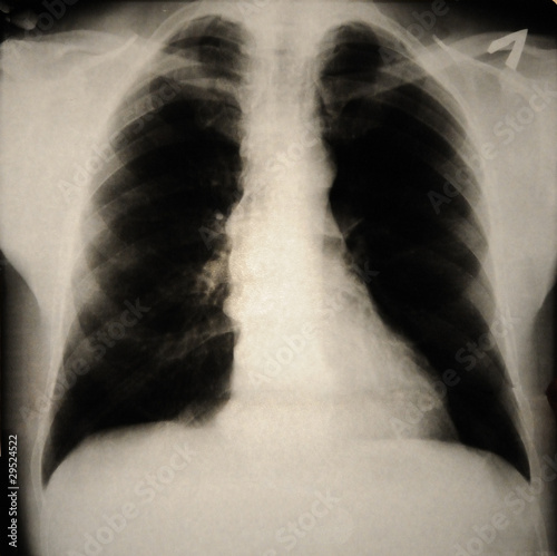 human chest with Forestier\'s disease on x-ray – kaufen Sie dieses ...