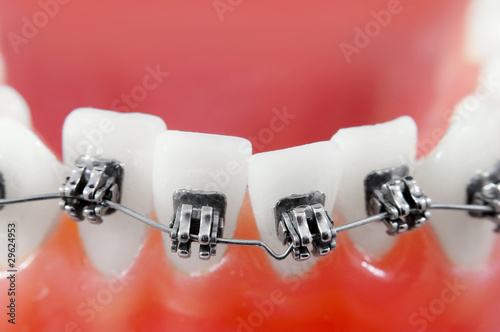 Fotografia  Dental braces super macro ,crooked teeth, shallow depth of field