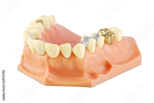 Dental model (with different treatments) Wallpaper Mural