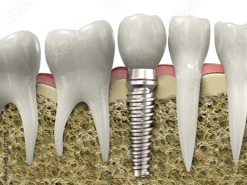 Dental implant #30331703