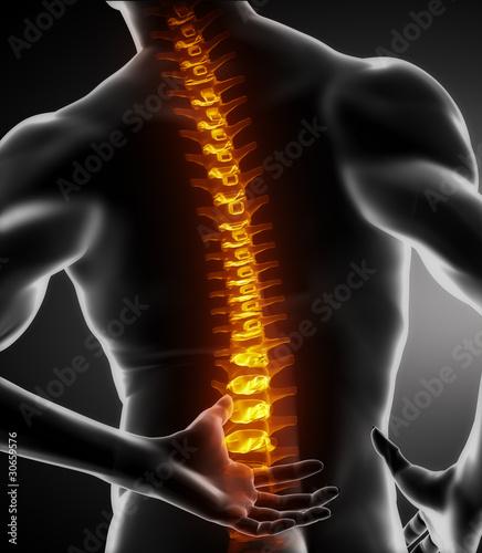 Plakaty o zdrowiu   bol-kregoslupa-u-mezczyzn-w-czesci-ledzwiowej