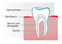 Zahn Modell