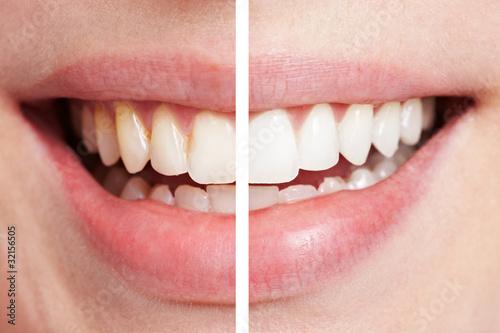 Slika na platnu Zähne vor und nach dem Bleaching
