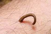 Leech On Human Skin