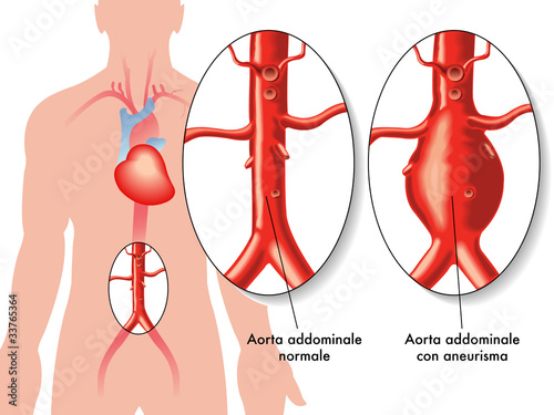Fotografía  Aneurisma aorta addominale