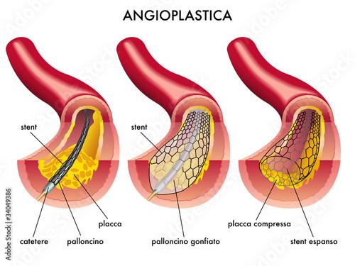 Cuadros en Lienzo Angioplastica
