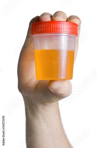 Foto  Urine Container