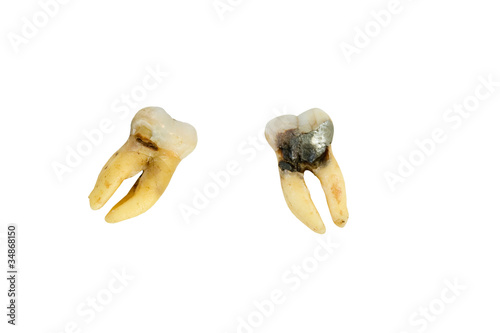Fotografija  extracted molar with cavity on a white background