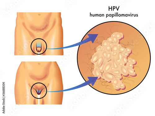 Fotografie, Obraz  HPV (papilloma virus umano)