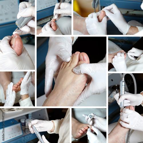 Foto op Plexiglas Pedicure Medizinische Fußpflege - Foot care - Chiropody