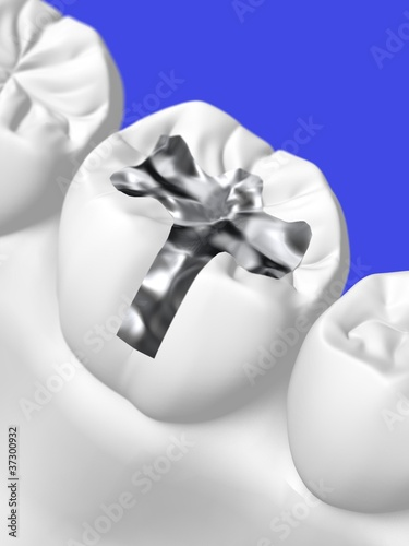 Obraz na plátně  歯科治療