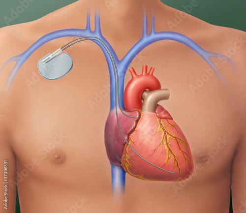 rozrusznik-serca-pozycjonowanie