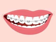 Braces Corrective Orthodontics