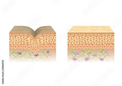 Fotografía  肌の断面図