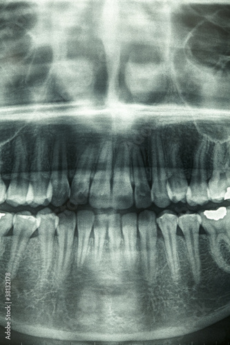Dental xray, horror skull – kaufen Sie dieses Foto und finden Sie ...