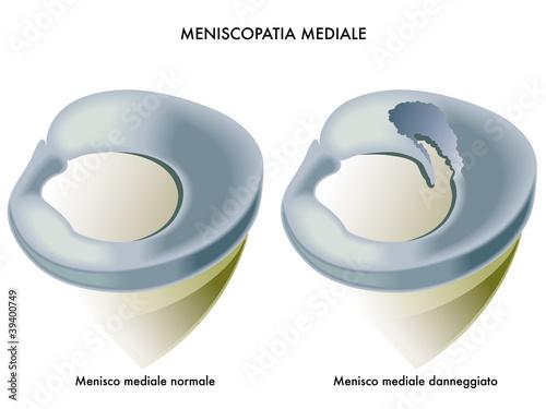 meniscopatia mediale Canvas Print