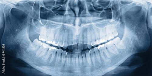Fotografie, Obraz  X-ray scan of teeth