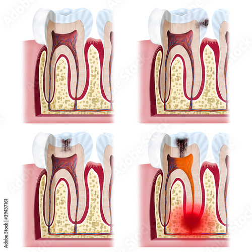 Dental Problems x4