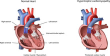 Heart Problem Hypertrophic Cardiomyopathy Vector Illustration.