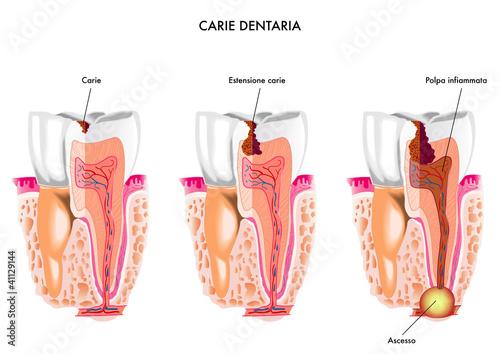 Carie dentaria Canvas
