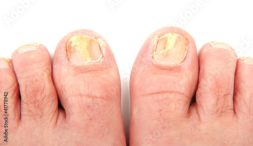 Fotografie, Obraz  Toenails infected with a fungus