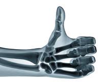 Hand Xray