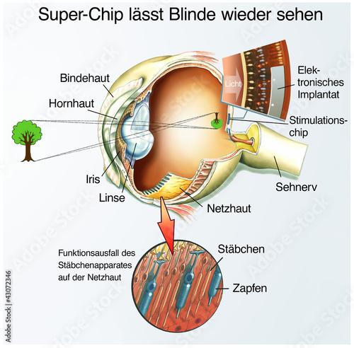 Fotografía  Spezial-Chip für Blinde