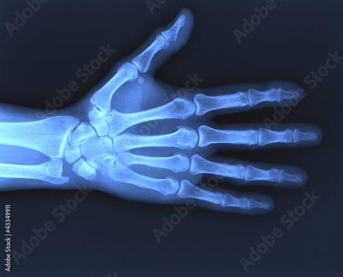 X-ray hand Wallpaper Mural
